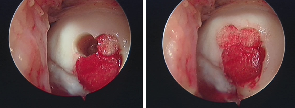 image showing Defect in medial femoral condyle treated with OATS (Mosiacplasty) treated by Mr. Aslam Mohammed.