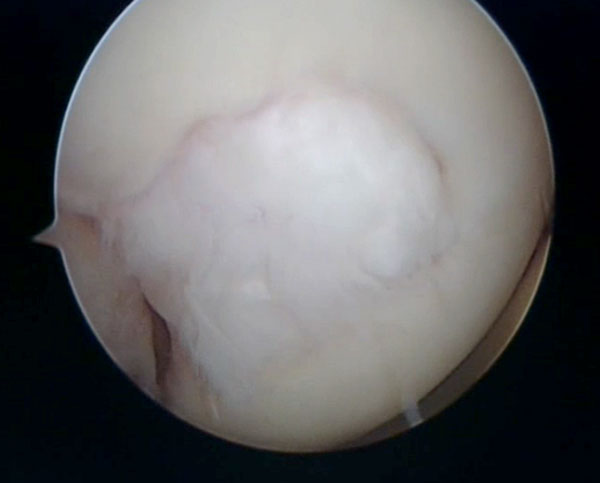 image Defect treated with micro fracture seen at six month showing fibrocartilage has filled in the defect. treated by Mr. Aslam Mohammed.high level atheltics   knee injuries