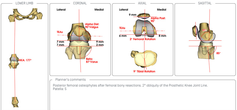 bespoke spoke hip and knee plant surgery at the North west hip and knee clinic performed by Mr Aslam Mohammed