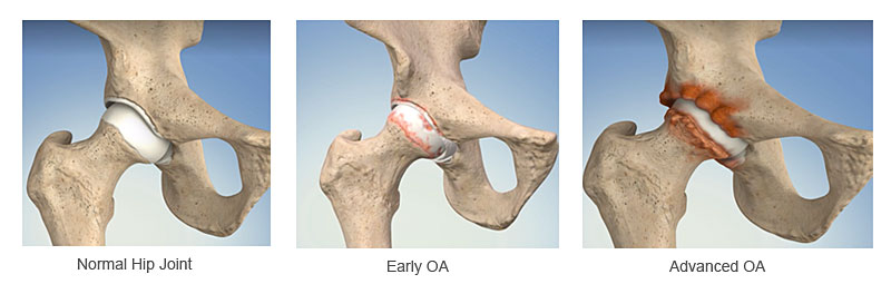 images showing normal hip early and advanced stages of hip arthritis