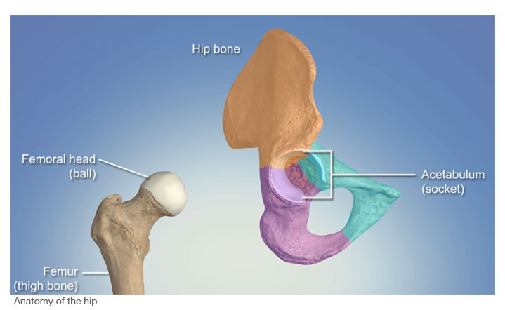 anatomy of the hip a ball and socket joint with arthritis the hip becomes deformed restricting movement