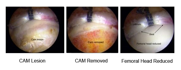 hip arthroscopy showing repaired labrum and CAM removed