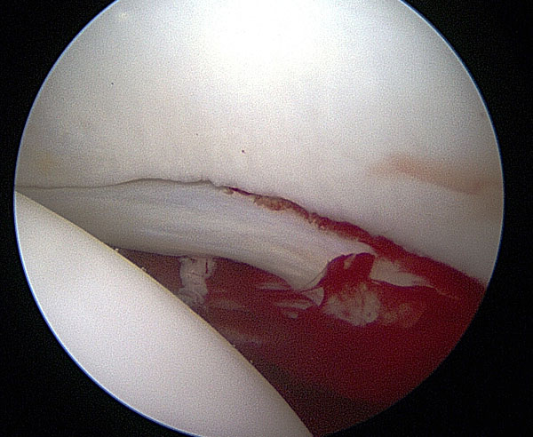 sports hip injuries arthroscopy image of hip joint showing Damage to the articular cartilage
