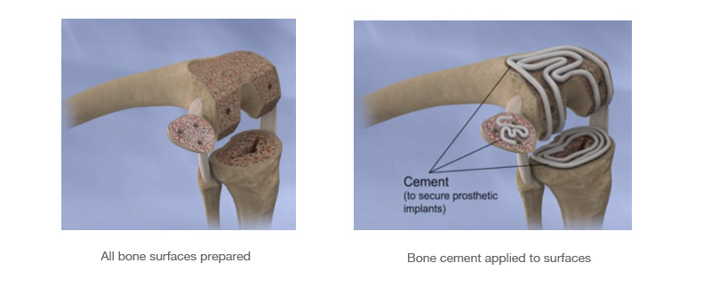 TKR placement images showing the process involved in total knee replacement