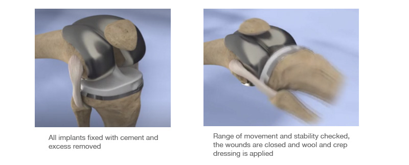 joint replacement illustation showing total knee replacement procedure
